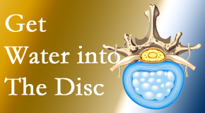 Satterwhite Chiropractic uses spinal manipulation and exercise to boost the diffusion of water into the disc which supports the health of the disc.
