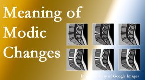 Satterwhite Chiropractic sees many back pain and neck pain patients who bring their MRIs with them to the office. Modic changes are often seen.