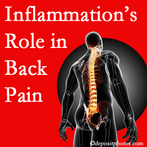 The role of inflammation in Oxford back pain is real. Chiropractic care can manage it.