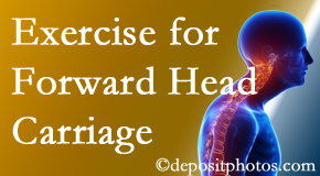 Oxford chiropractic treatment of forward head carriage is two-fold: manipulation and exercise.