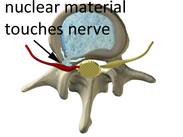 inner nuclear material of the disc touches the spinal nerve to cause pain