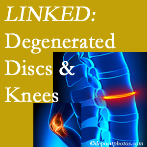 Degenerated discs and degenerated knees are not such unlikely companions. They are seen to be related. Oxford patients with a loss of disc height due to disc degeneration often also have knee pain related to degeneration.